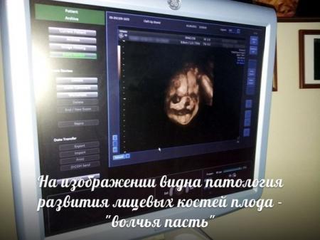 В Актау ранние патологии плода при беременности теперь диагностируют при помощи новейших технологий