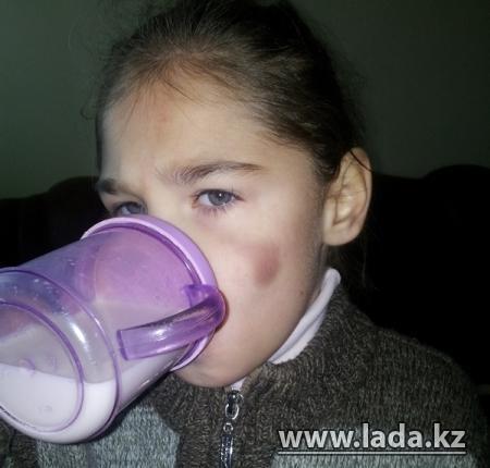 Прокуратура Актау выясняет, откуда у девочки из интерната для детей-психохроников появляются синяки