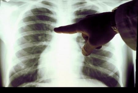 В Актау стартовал месячник борьбы с туберкулезом