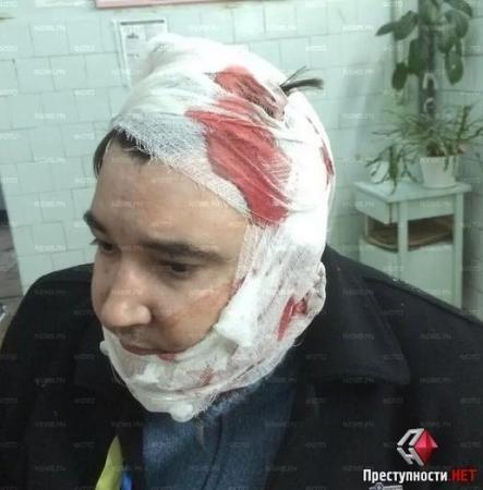 В Николаеве в результате столкновений и перестрелок пострадали 10 человек – СМИ