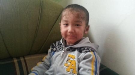 """В Кызылорде помогают мальчику с """"рыбьей чешуей"""" вместо кожи"""