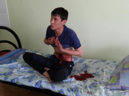 В Актау пациент тубдиспансера порезал себе живот в знак протеста против выписки