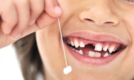 Индийские хирурги удалили подростку 232 зуба