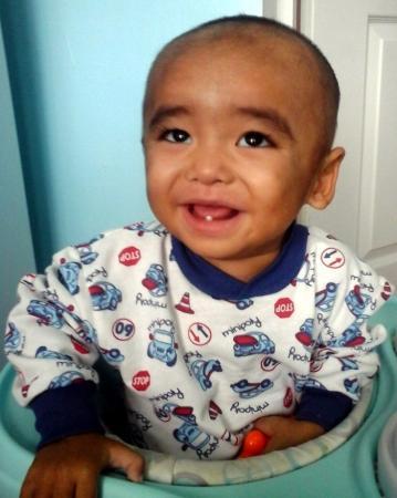 Маленькому Акнуру поставили диагноз: легкая форма ДЦП