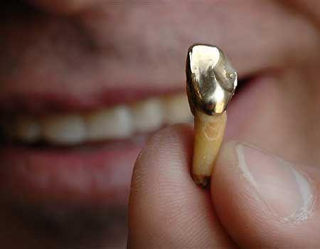 Золотые зубы могут стать проблемой для казахстанцев при выезде за границу