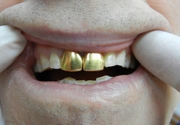 Ситуацию с золотыми коронками разъяснили специалисты