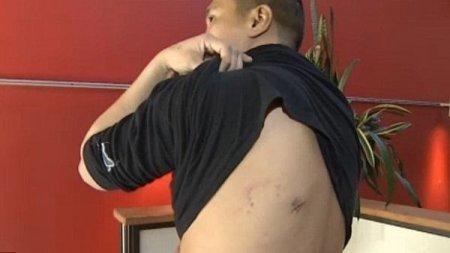 Молодой человек месяц проходил с лезвием ножа в спине