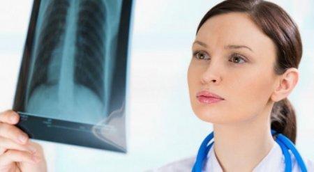 Казахстан может отказаться от флюорографии в качестве анализа на туберкулез