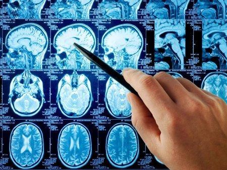 Инсультные центры откроются по всему Казахстану